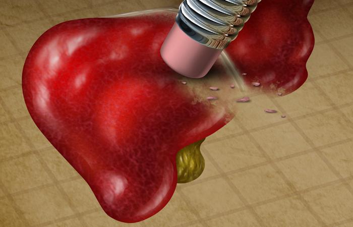 Hepatias - Enfermedades hepáticas - Hígado